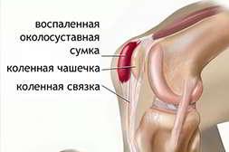 20Flex+ лечит воспаление суставов