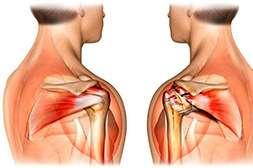 Сустадонт укрепляет суставы