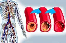 Препарат Артерио ликвидирует кислородную недостаточность в крови