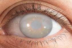 Perfect Vision предотвращает развитие серьёзных офтальмологических заболеваний.