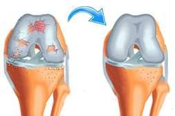 Благодаря Диклену обеспечивается процесс регенерации связок, смазки, мышц, костных структур.