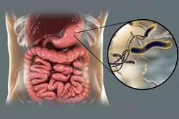 Польза Пилориса в нераспространении вредоносных микроорганизмов.
